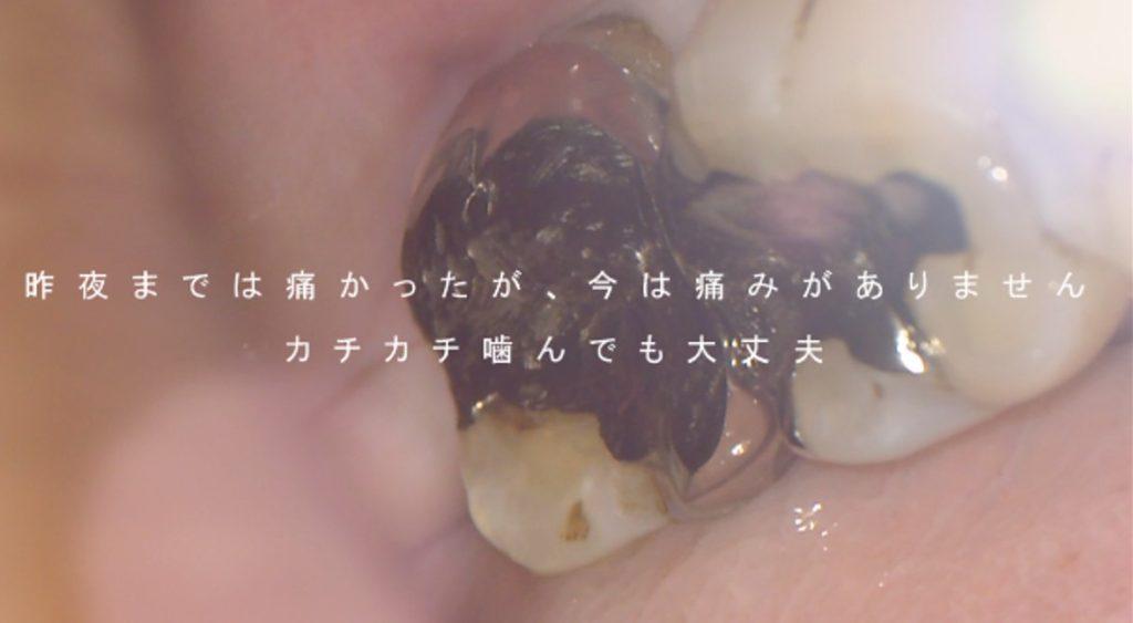 知覚過敏 ズキズキ痛む 痛くなくなる 歯ぐきが腫れる 歯髄壊死 神経が死んでいる 根管治療