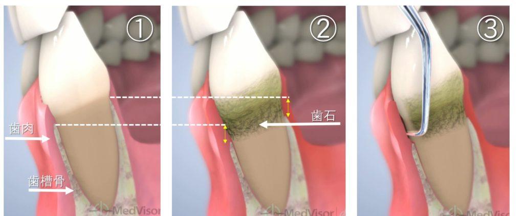 歯周病 歯石 原因 手術 骨の溶ける病気