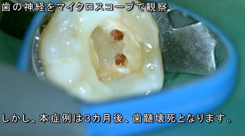 歯医者 神経が死んでしまった症例 歯の神経を残す治療とマイクロスコープラバーダム根管治療の実際の様子 動画で解説 歯髄 神経