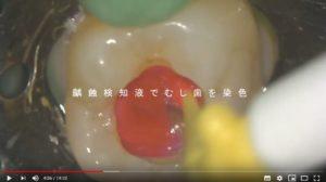 齲蝕検知液でむし歯を染色