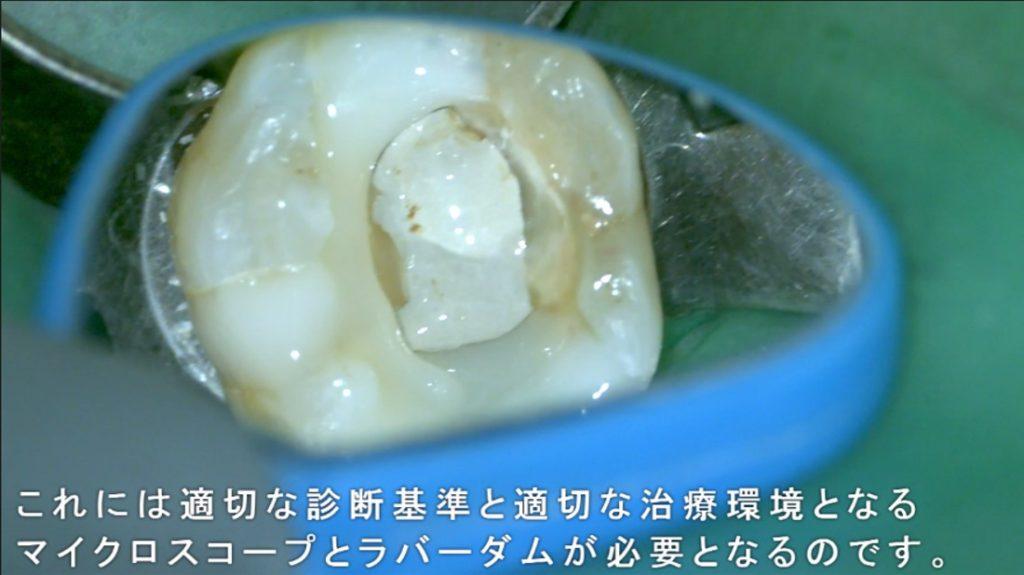 MTA 部分断髄法 歯の神経を残す