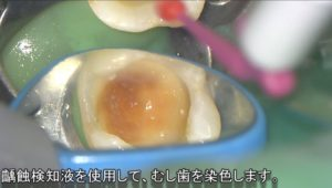齲蝕検知液 むし歯を染色