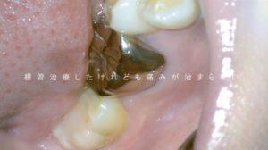根管治療したけれど痛い 歯ぐきが腫れている