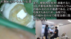 歯医者 神経が死んでしまった症例 歯の神経を残す治療とマイクロスコープラバーダム根管治療の実際の様子 動画で解説 従来の根管治療 水酸カルシウム