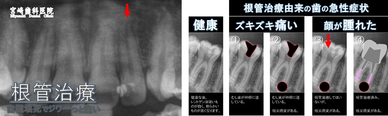 歯 が 痛く て 寝れ ない 【薬・冷やす・ツボ】歯が痛くて眠れないときの対処法。薬が効かない...