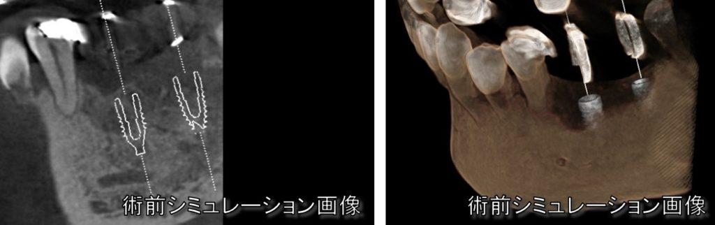 インプラントシミュレーション インプラントできるかどうか 調べる CT 手術室 虎ノ門汐留霞ヶ関新橋内幸町日比谷歯科歯医者