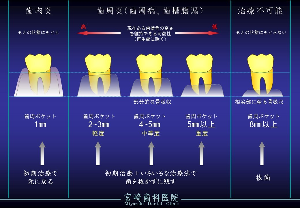 歯周病 どんな治療法 歯周ポケットで診断