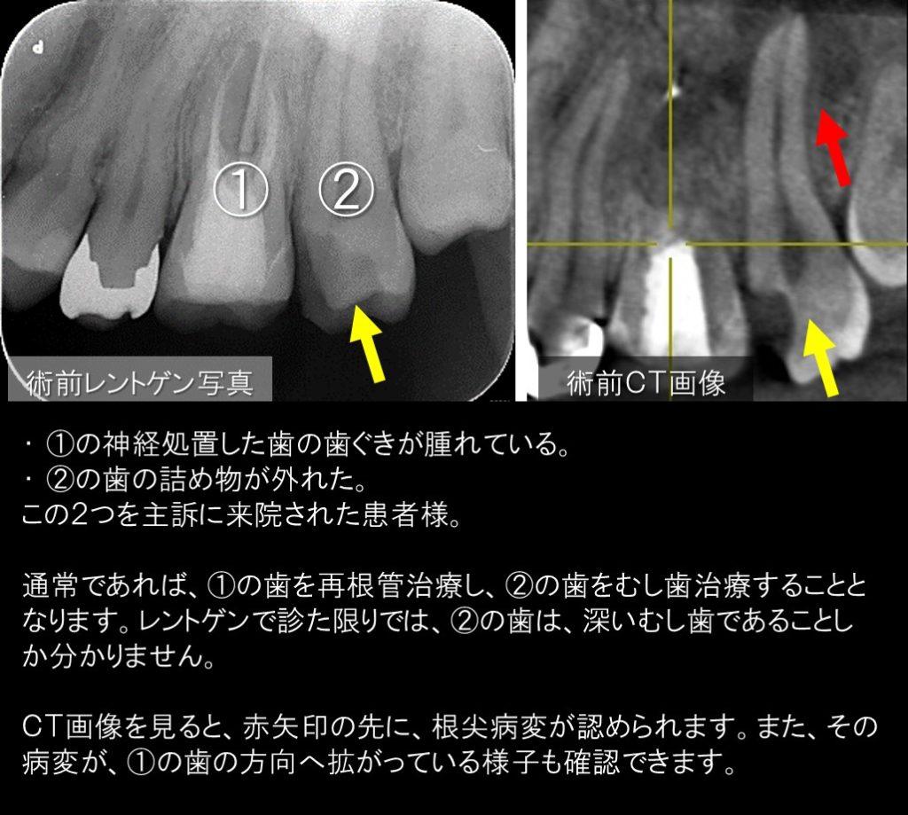 歯ぐきが腫れている 原因 神経が死んでいる 根管治療 根っこの治療 専門医 マイクロスコープ ラバーダム 東京都内港区千代田区 歯医者