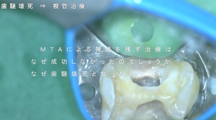 歯髄壊死 根管治療