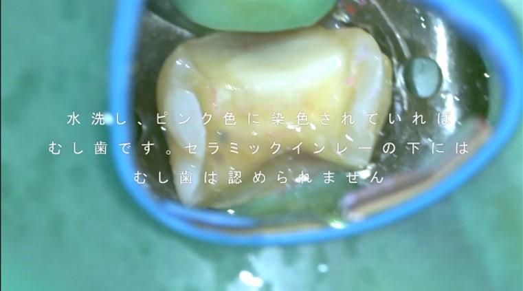 セラミックインレー 神経が死んでいる 歯ぐきが腫れている