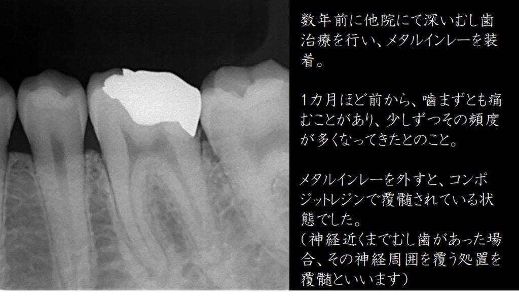 歯の神経をとる デメリット 歯の神経を残す取らない方法治療法