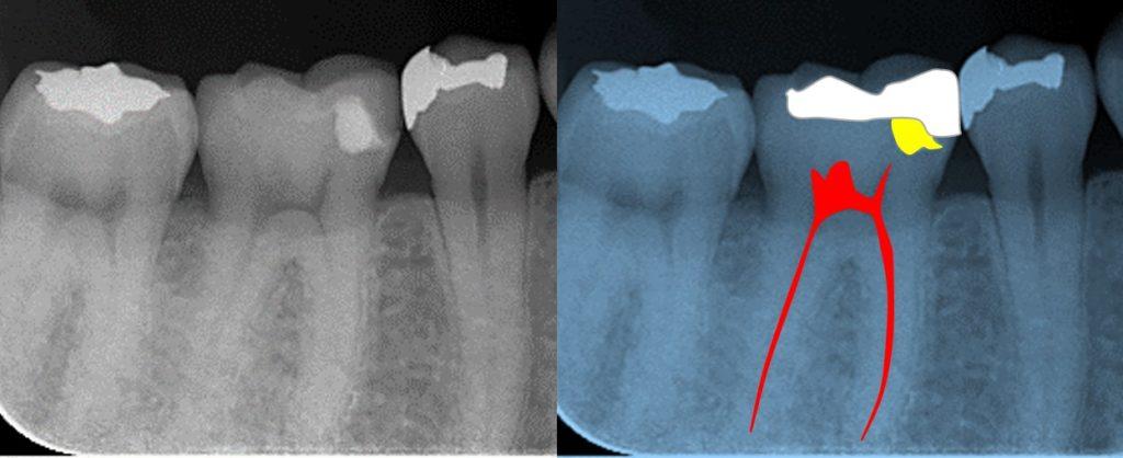 術前レントゲン写真 覆髄材 セラミックインレー 深いむし歯