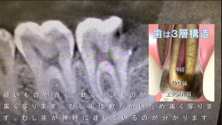 親知らず 手前の歯がむし歯 横からはえて 神経の治療 神経取る治療が必要と云われた 根管治療 神経残したい 図 CT画像