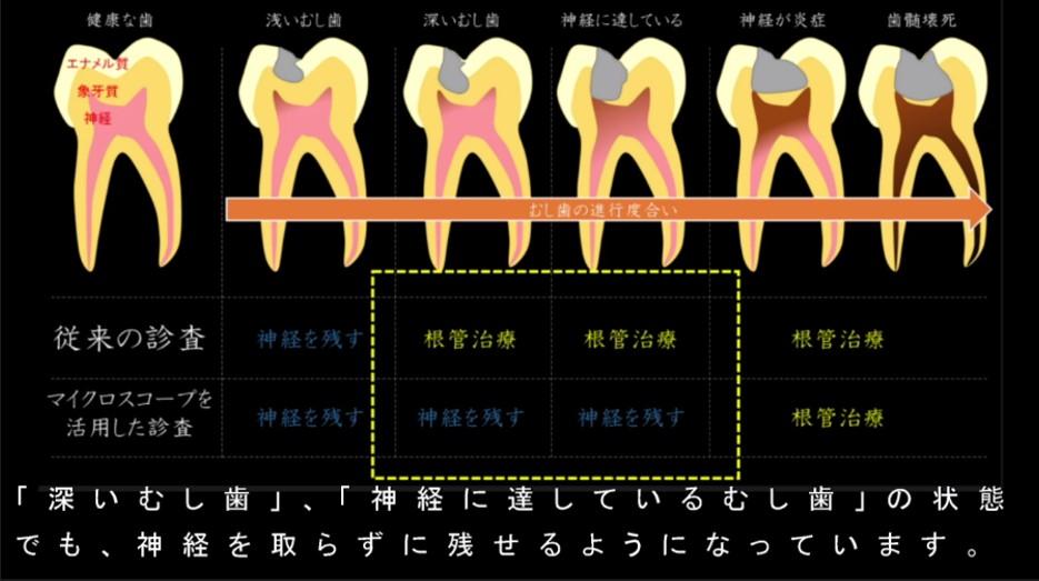 むし歯の深さとその治療法について 従来の肉眼による治療法とマイクロスコープによる治療法の違いとは 深いむし歯 神経に達しているむし歯でも歯の神経は残せる