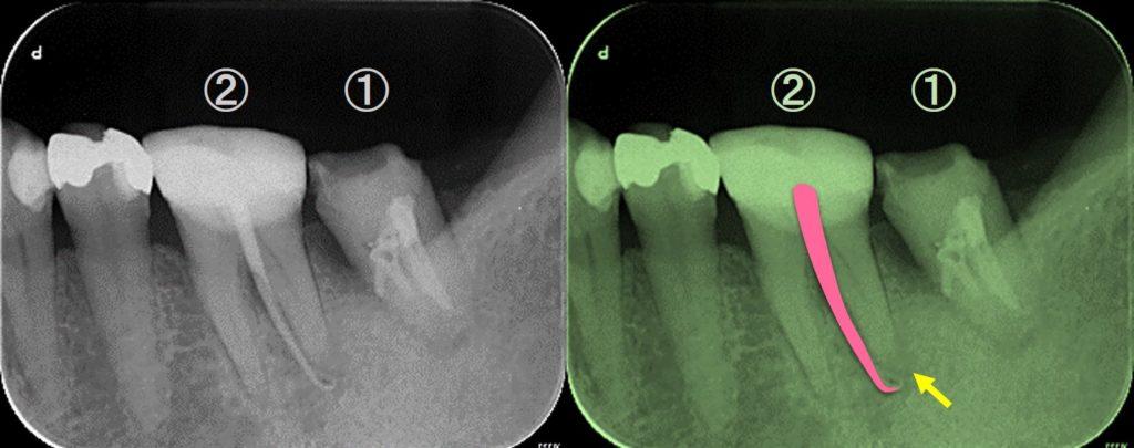 歯ぐきが腫れている 原因はなにか レントゲン写真 神経が死んでいる歯髄壊死 根管治療必要か?