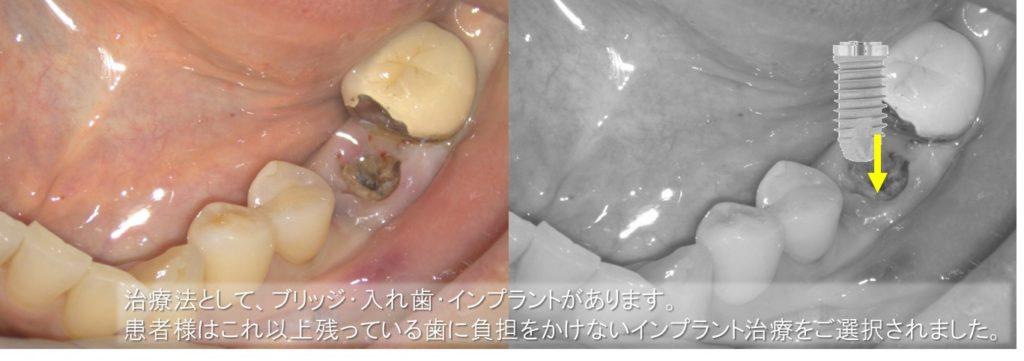 インプラント 初診時 口内写真 レントゲン画像 下顎大臼歯 カンチレバーブリッジブリッジの支え ②