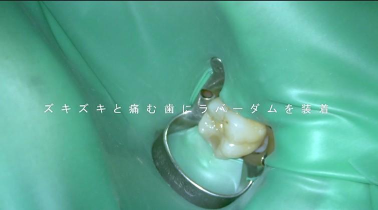 神経を残す治療 しかし 歯髄壊死 ズキズキ ジーンと痛い マイクロスコープ ラバーダム