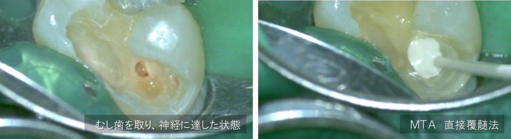 深いむし歯 神経に近い 神経に達している 露髄 根管治療が必要といわれた レントゲン画像 神経残す治療 対処法 術前術中術後 画像マイクロスコープ