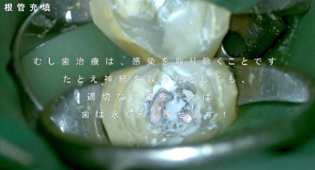 歯の神経をとる メリットデメリット 歯が弱くなる 寿命が短くなる 本当か? マイクロスコープラバーダム根管治療