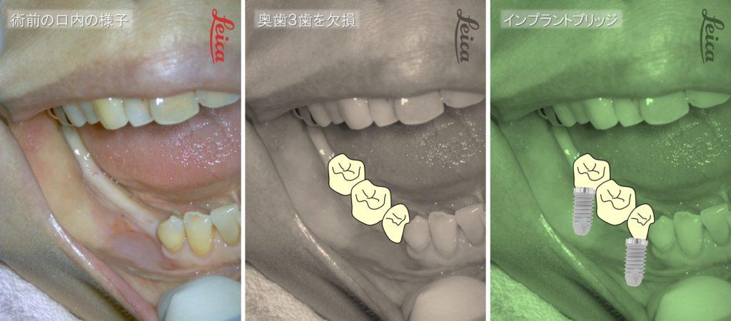 下奥歯の欠損 3歯 インプラントブリッジの症例 術前の口内写真