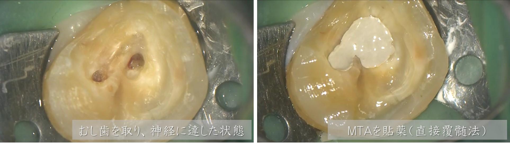 深いむし歯 神経残す 神経取らない治療法 方法 歯科 ラバーダムマイクロスコープ MTA直接覆髄法