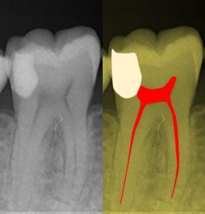 深いむし歯 神経に達している 神経を残す治療後のレントゲン写真 他院