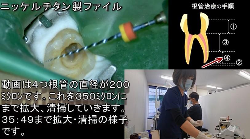 歯医者 神経が死んでしまった症例 歯の神経を残す治療とマイクロスコープラバーダム根管治療の実際の様子 動画で解説 従来の根管治療 ニッケルチタン製ファイル