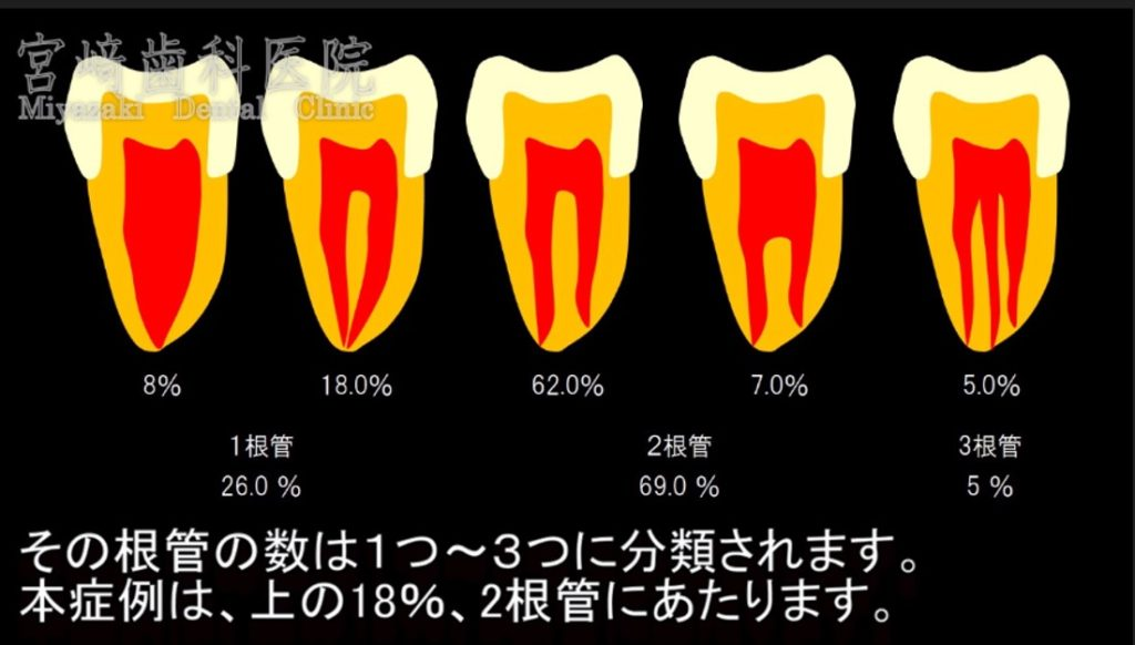 上顎第一小臼歯 2根管 18%が2根管で1根尖