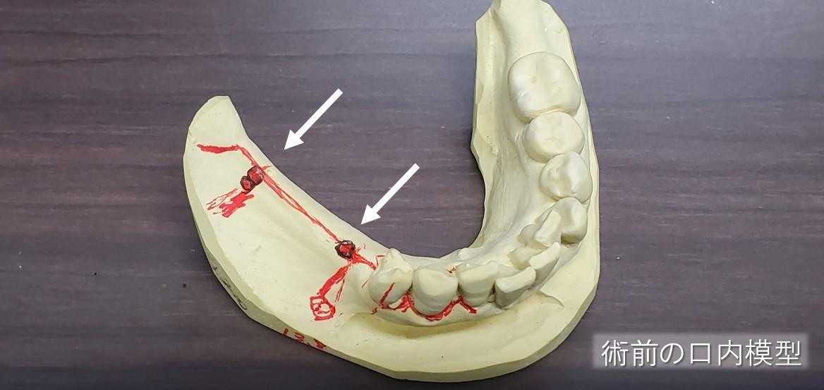 術前の口内模型でインプラント手術をシミュレーション