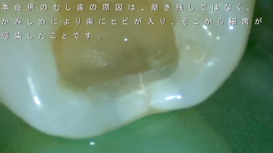 かぶせもの つめもの 外れる理由 かみあわせ 歯ぎしり くいしばり 歯が割れる折れる ヒビ