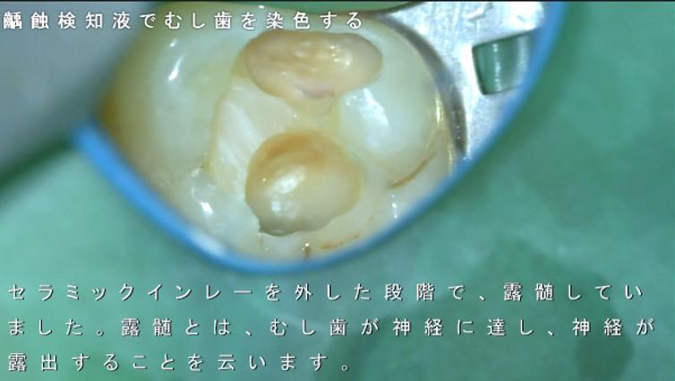 露髄 深いむし歯 神経残す マイクロスコープ 画像