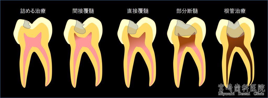 間接覆髄法 直接覆髄法 部分断髄法 根管治療 のむし神経を残す治療 できるだけ削らない治療 できるだけ神経を残す治療 歯の進行度合いを図で説明