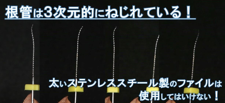 根管は3次元的にねじれている Kファイルは使用しても15番まで!