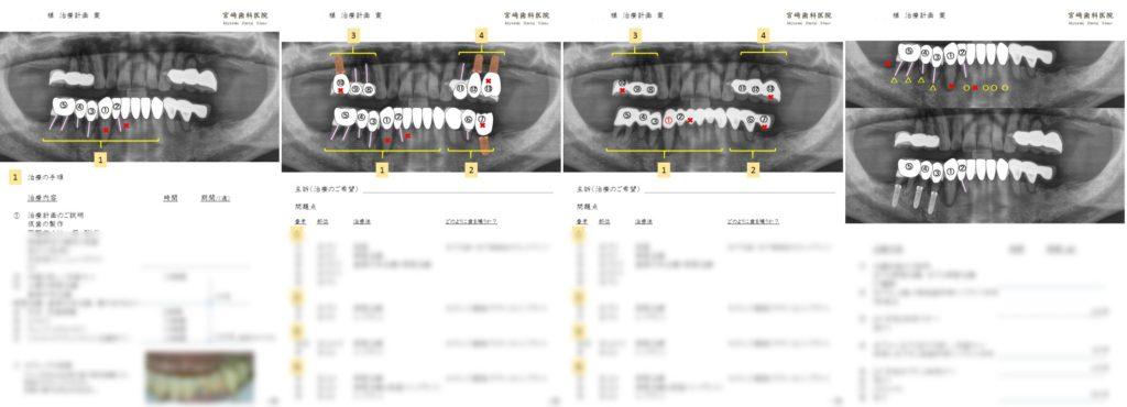 治療計画書 インプラント 治療方法 手順 CTシミュレーション 2