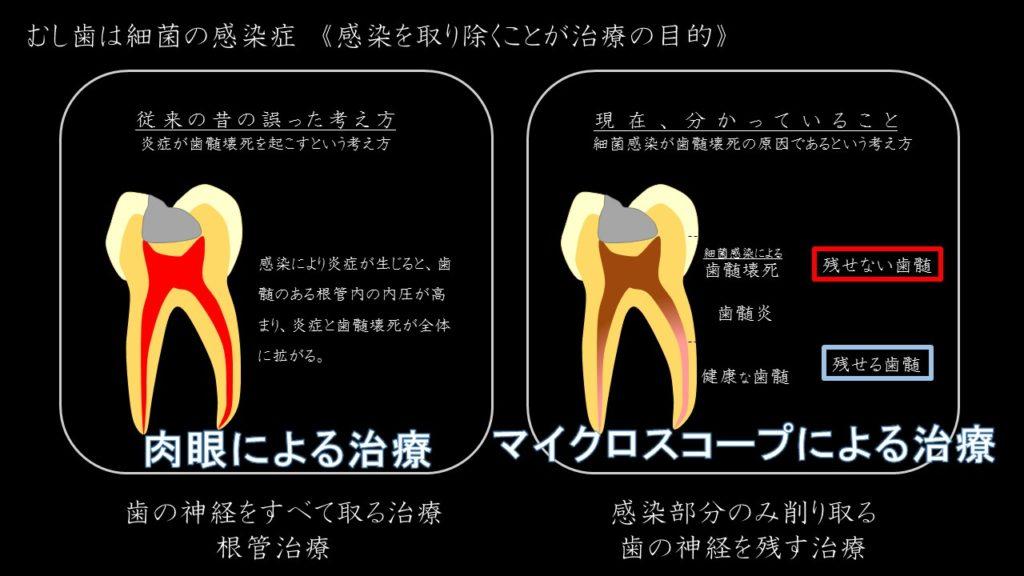 マイクロスコープ 歯の神経を残す治療 根管治療しない 出来るだけ残す 抜かない その根拠 治療法 1