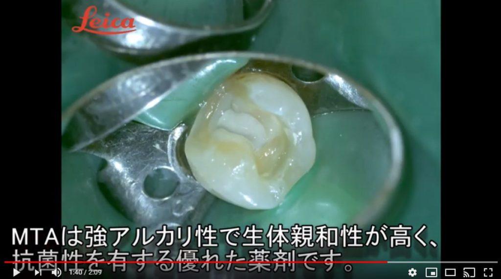 間接覆髄法 MTA 神経を残す 取らない治療 セラミックインレーの下がむし歯 歯と歯の間がむし歯 マイクロスコープ画像
