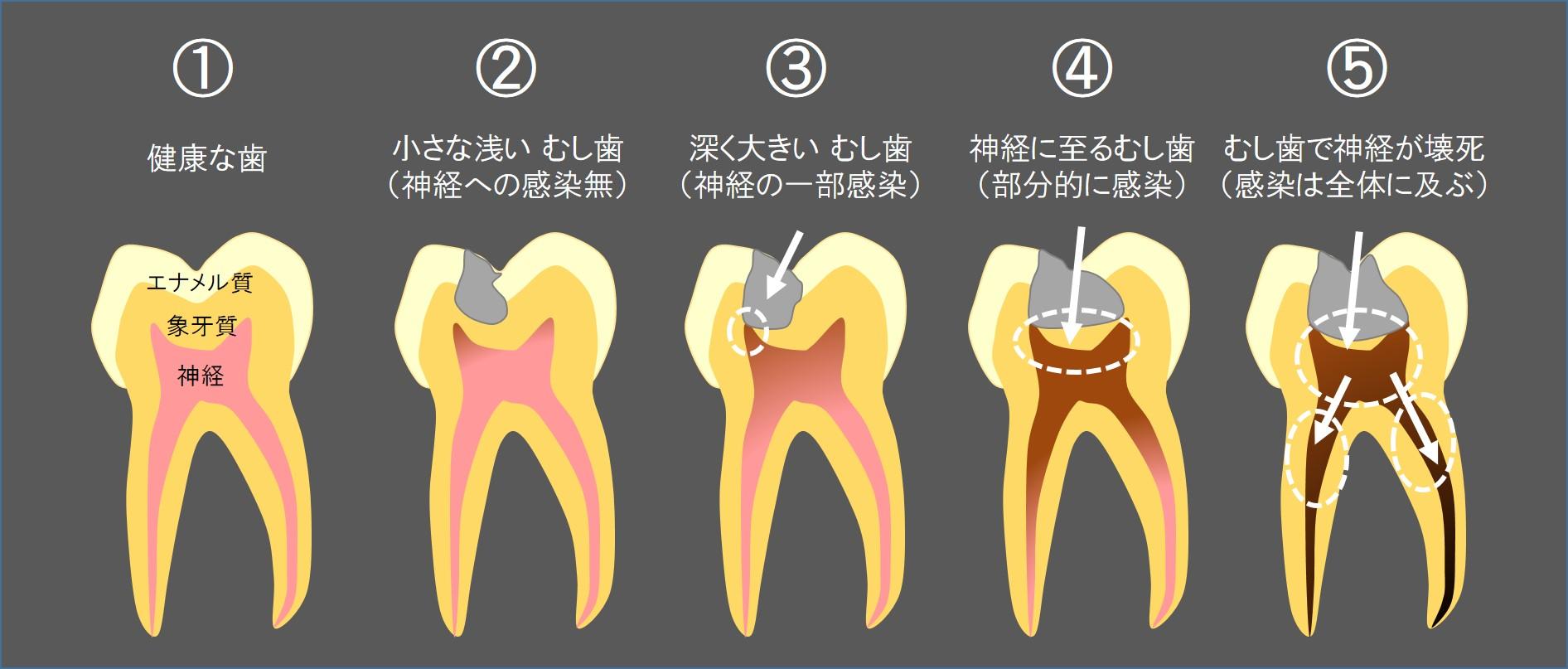 むし歯の進行と歯の神経の炎症・感染・壊死の状態 歯の神経を残す治療 根管治療について 3