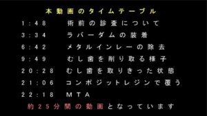 マイクロスコープ 動画 タイムスケジュール