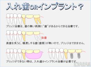 ブリッジ入れ歯インプラント違い メリットデメリット 歯を抜歯したら 抜いたらどうする