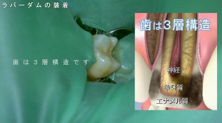 歯の構造 深いむし歯治療 ラバーダム