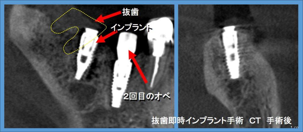 インプラント 右下奥歯 抜歯即時インプラント手術 CTシミュレーションと術後CT画像②