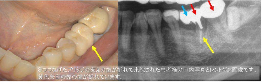 インプラント 初診時 口内写真 レントゲン画像 下顎大臼歯 カンチレバーブリッジブリッジの支え
