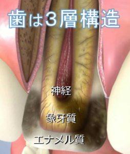 歯は3層構造 神経を残す治療 根管治療