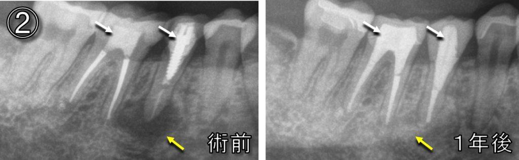 根管治療 やり直し 術前術後 マイクロスコープラバーダム 下顎小臼歯大臼歯MTA 根っこに穴が空いている 根尖病巣病変治す