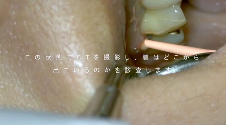 歯ぐき 腫れる ニキビ 痛くない 深いむし歯 神経が死んでいる 歯髄壊死 根管治療 診査する方法 調べる方法 原因