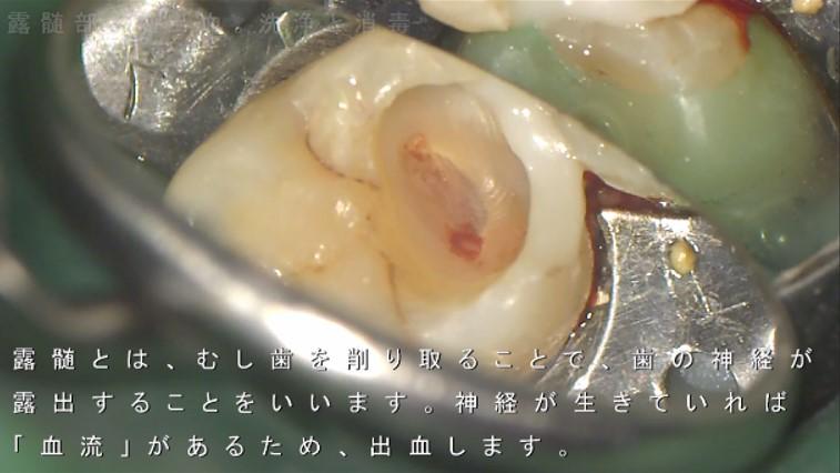 露髄 深いむし歯 歯の神経をとる 抜く と云われた症例 神経取りたくない 画像 奥歯 痛くない マイクロスコープ ラバーダム できるだけ削らない治療 齲蝕検知液 むし歯かどうか