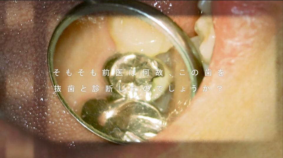 抜歯と診断された歯 画像 再根管治療 治る 治療法