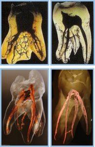 歯の神経は複雑です!