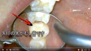セラミックインレーの下がむし歯 歯と歯の間がむし歯 マイクロスコープ画像
