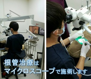 根管治療はマイクロスコープで施術します